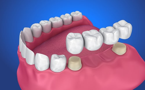 Dental Bridges in Walsall