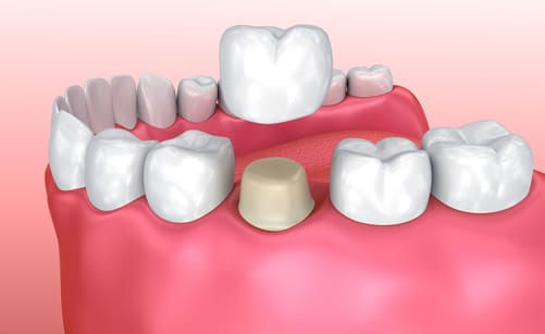 Dental Crowns in Walsall