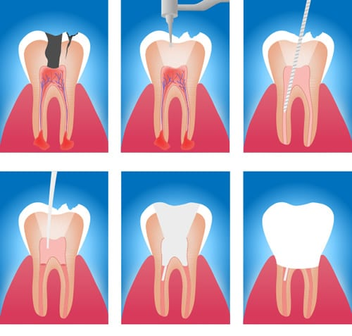 Root Canal Treatment in Walsall